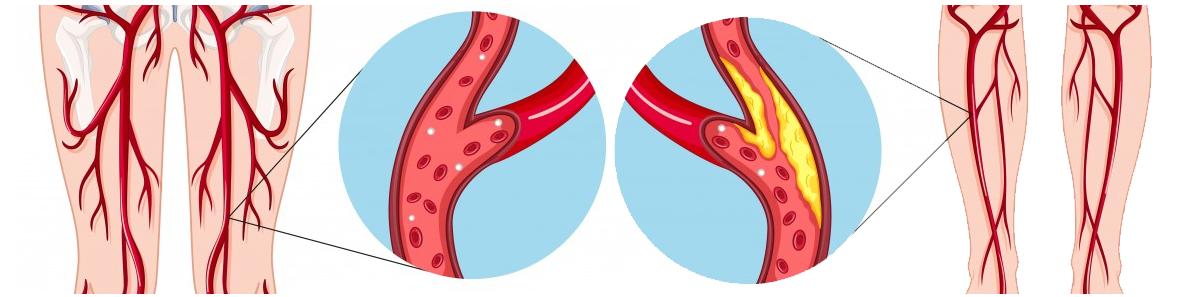Peripheral artery disease depiction
